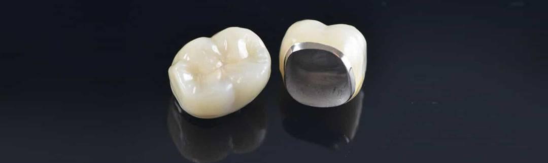 dental crown care