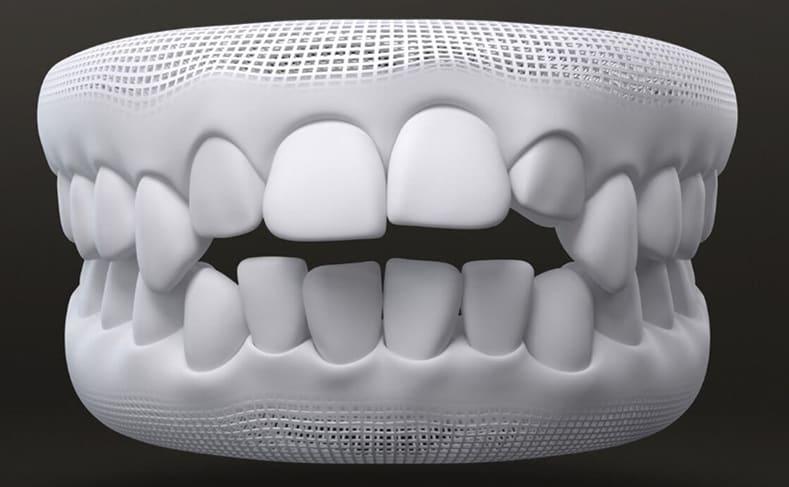 teeth crowding problem