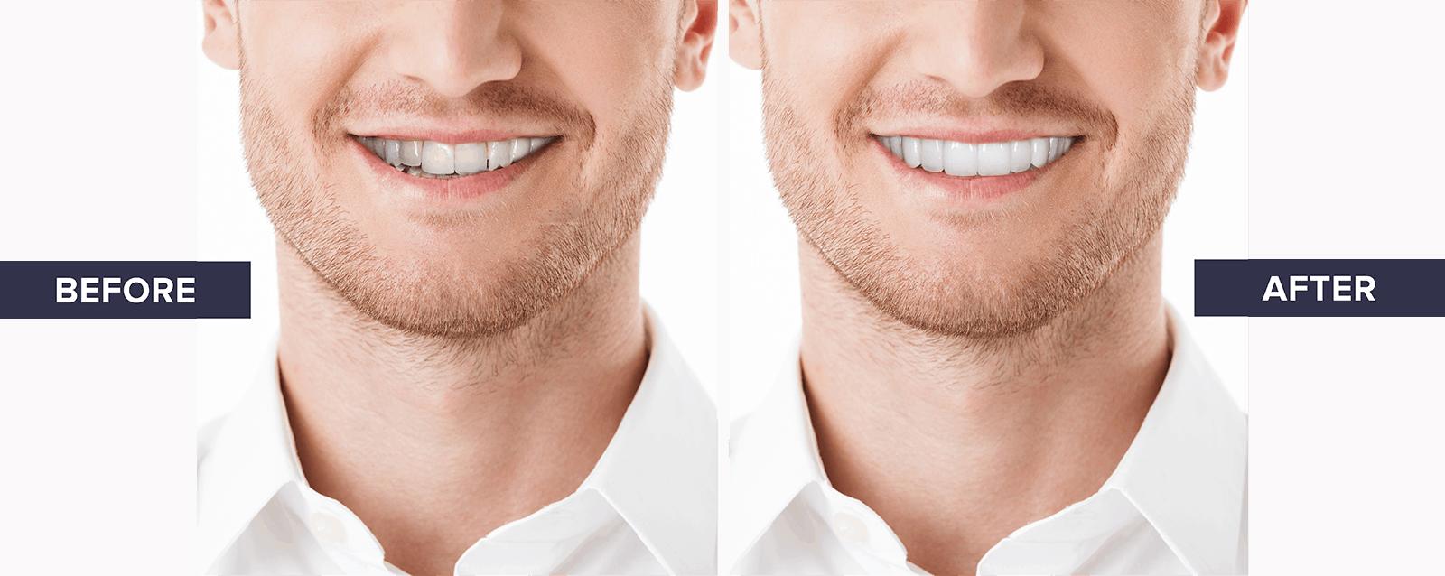 Veneers comparison after treatment
