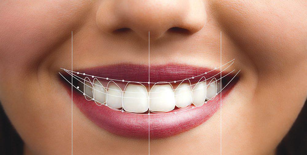 smile makeover digital strategy